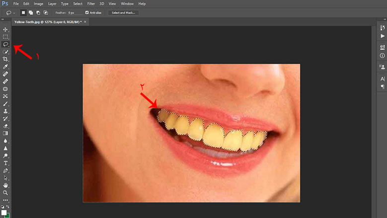 روتوش دندان در 5 دقیقه