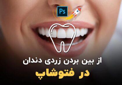 از بین بردن زردی دندان در فتوشاپ